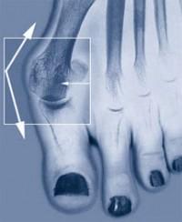 Народные средства от косточек на ногах