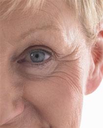 Морщины вокруг глаз: как убрать