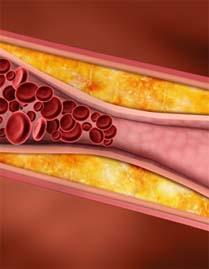 Признаки облитерирующего атеросклероза артерий нижних конечностей