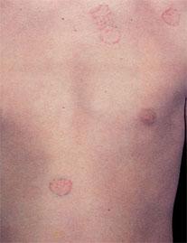 Что же такое заболевание витилиго