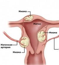 Анемия при миоме матки