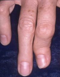 Псориатический артрит причины симптомы и лечение