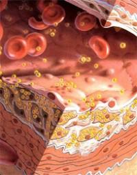 Купить анализатор мочевой кислоты и холестерина в крови