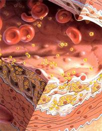 повышенный холестерин норма женщин